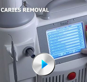 Caries Removal with Dental Laser